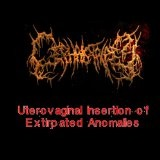 Uterovaginal Insertion Of Extirpated Anomalies Lyrics Cephalotripsy